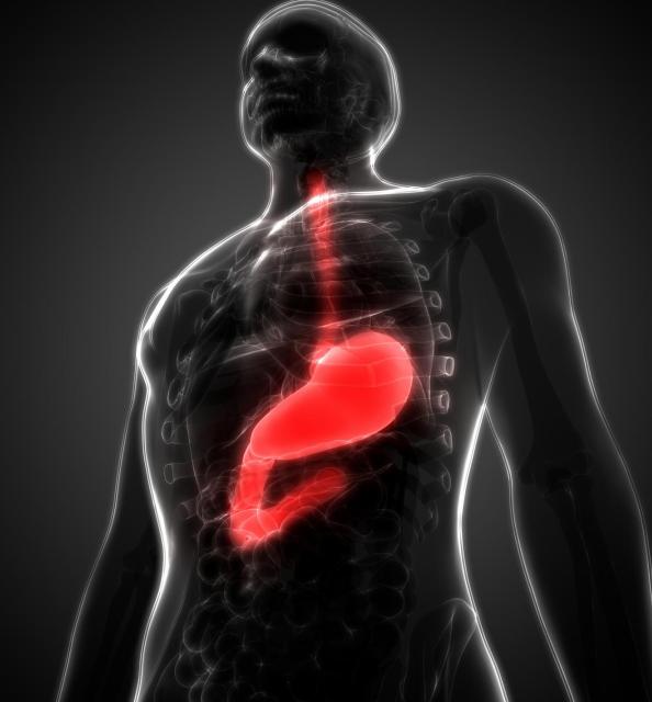 结 肠 癌 和 直 肠 癌