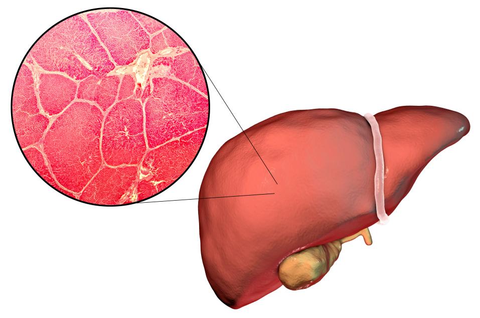 预防肝癌需要采取什么措施?五种方法远离肝癌
