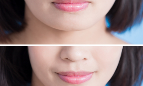 漂唇后多久能恢复正常?漂唇的效果能保持多久?