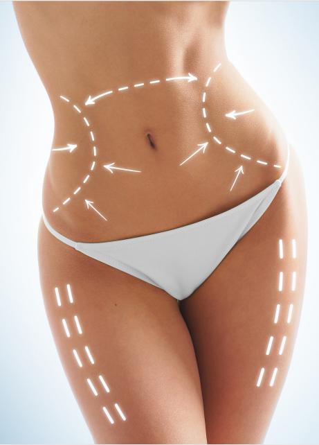 溶脂针是啥原理?注射溶脂减肥的适用范围在哪?注射溶脂减肥又有哪些优势?