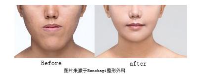 小脸手术风险不小  如何避免误伤