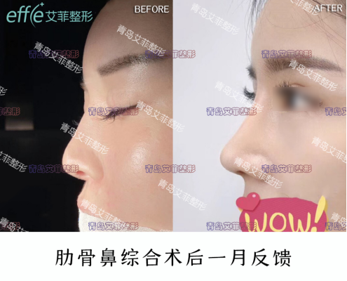 青岛艾菲整形BLing经典隆鼻案例 肋骨隆鼻日记