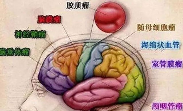 脑部肿瘤早期症状如何以及如何防治?