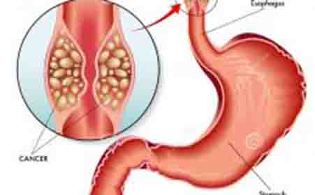 食道癌早期症状你知道吗?
