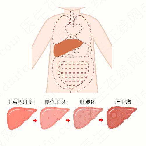 家庭集聚性肝癌如何预防?