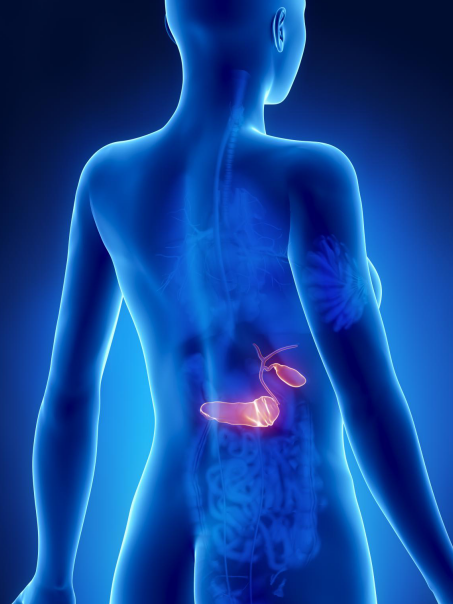 胰 腺 癌 高 死 亡 率 原 因