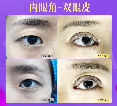 开内眼角和外眼角有什么区别?开眼角回留伤疤吗?