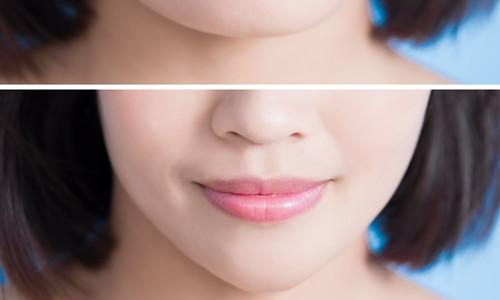 杭州隆下巴的美学标准是什么?有哪些隆下巴的方法呢?