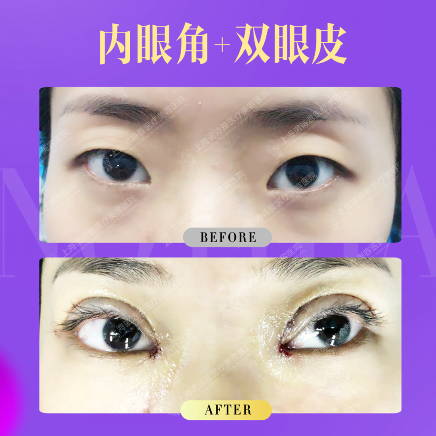 上海做眼部综合手术去哪里好?上海诺诗雅整形口碑如何?