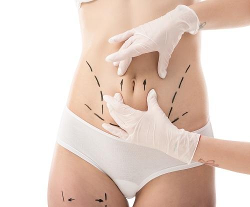 南京腹部吸脂的方法有哪些?哪个方法瘦肚子效果好?