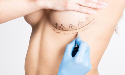 隆胸注射物取出的方法有哪些?隆胸注射物取出手术有什么特点?