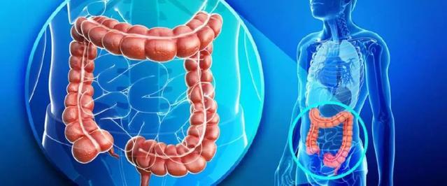 直肠癌放射治疗,直肠癌放疗优点