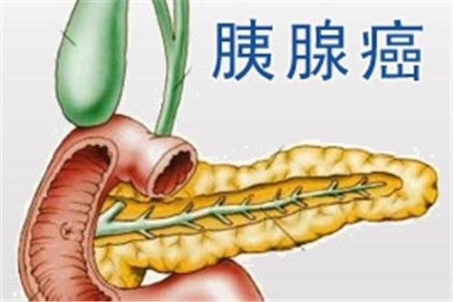 胰腺癌的早期诊断,胰腺癌的早期症状