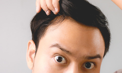 什么是雄激素源性脱发?早期、中期、晚期有哪些特点?
