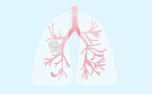 晚期肺癌的心理护理应该注意哪些问题?