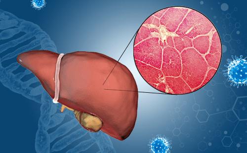 胰腺癌早期有哪些症状?