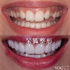 整牙齿会改变脸型吗?明星整牙会瘦脸是真的吗?