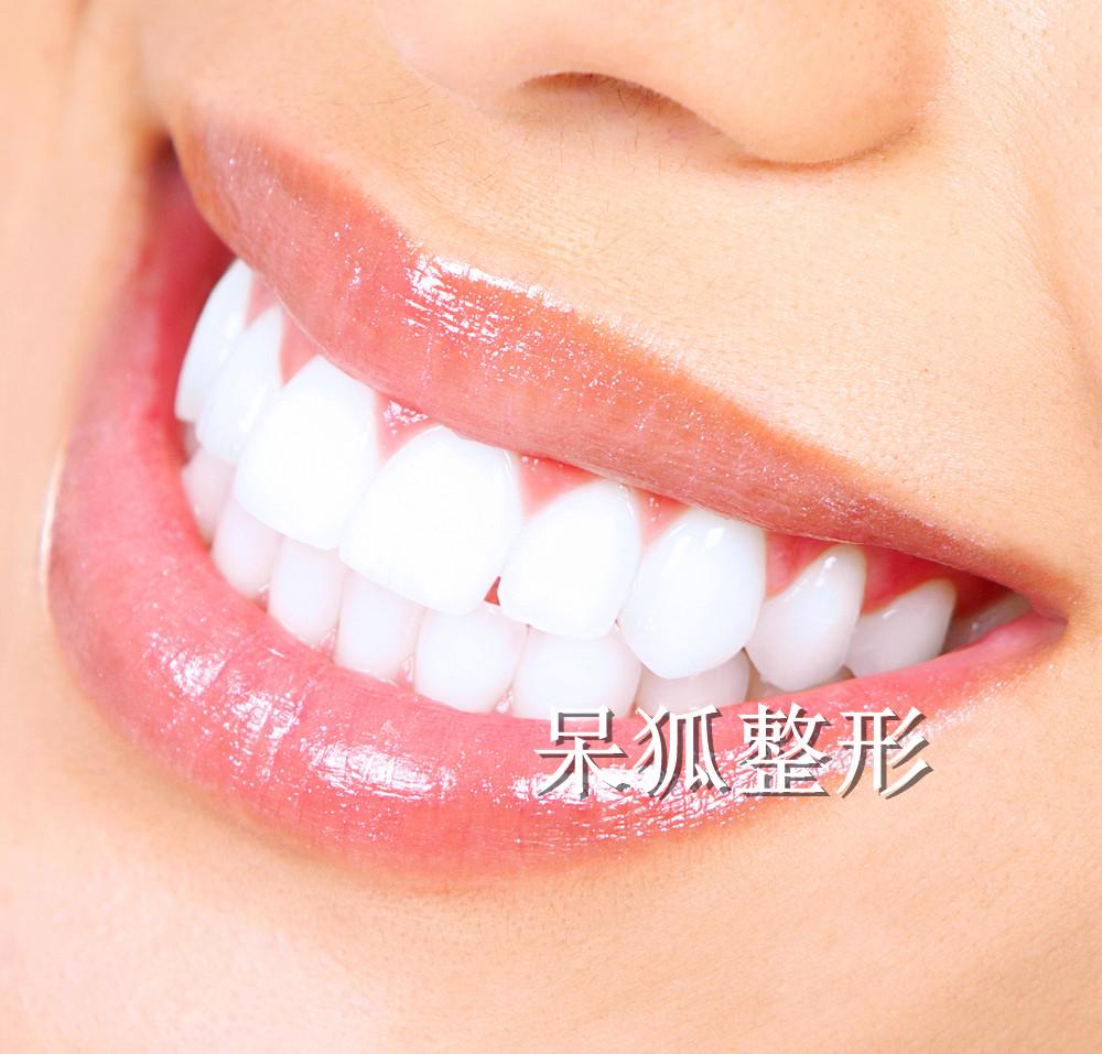 深圳美莱口腔隐形矫正牙齿怎么样?隐适美隐形矫正和时代天使隐形正畸有什么区别?