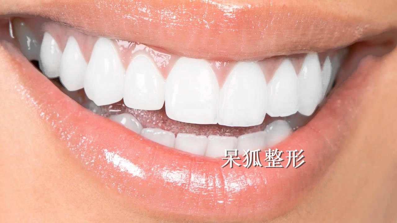深圳美莱口腔全瓷牙的种类有哪些?全瓷牙价格怎么样?