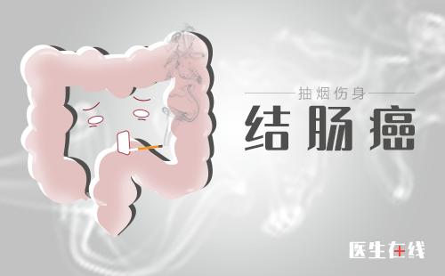 结 肠 癌