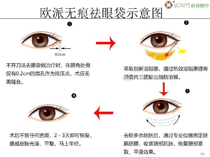 欧派无痕祛眼袋跟别家的有什么区别?北京去眼袋哪家好?