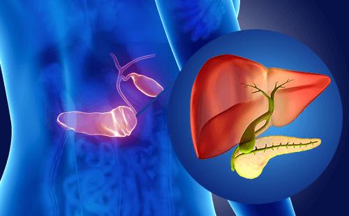 胰腺癌你别怕,三个预防告诉你
