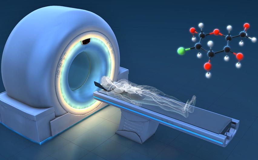 PETMR能检查哪些肿瘤疾病?PETMR辐射很大吗?