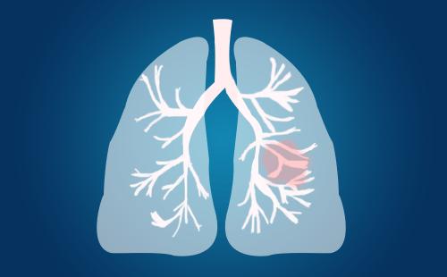 肺 癌 术 后 咳 嗽