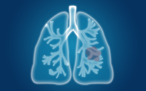 肺癌早期症状不明显,出现这四个症状你要小心了!