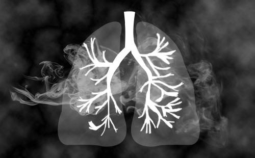 肺 癌 咳 嗽