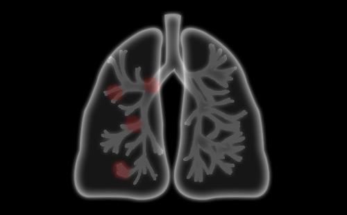 体检发现肺部结节怎么办?肺部结节多长时间会癌变?