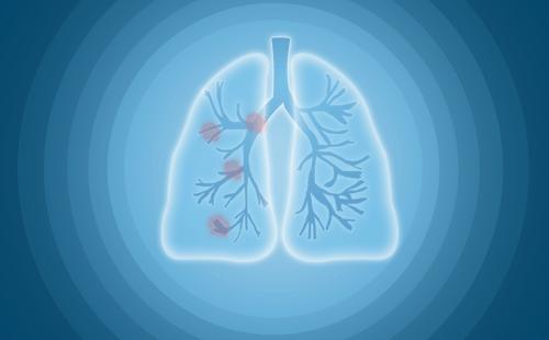 小 肺 结 节 癌 变