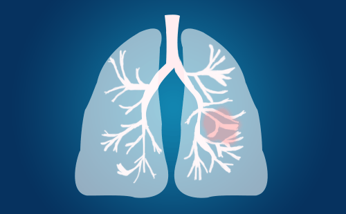查出肺结节,肺结节良性几率多大?