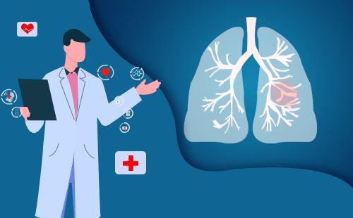 什么是单肺结节?单个肺结节的原因是什么?