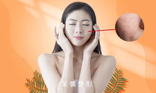 激光祛痘有用吗?