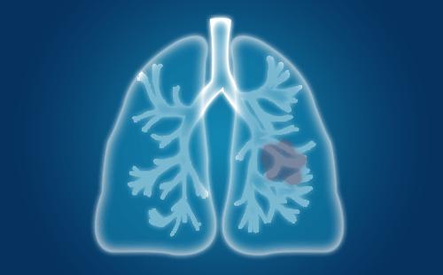 肺结节内可见点状钙化是怎么回事?