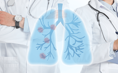 什么是肺部小结节?肺结节的早期症状通常是什么样的?