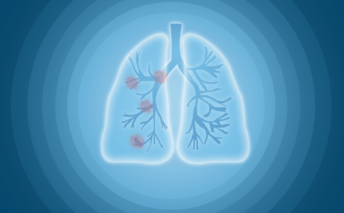肺上有结节是怎么治疗?