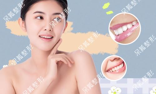 m唇整容是什么样子的?微笑唇和m唇有什么区别?