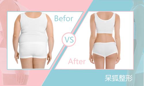 臀部抽脂减肥后会不会反弹?臀部抽脂术前与术后注意事项要注意什么?