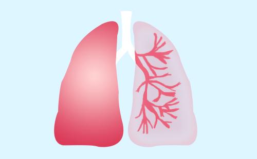 肺癌早期都有哪些肺内症状?
