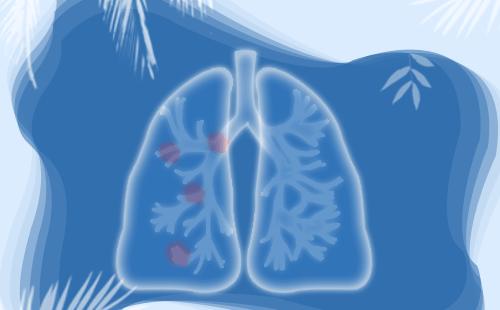 肺癌的早期症状?如何清肺护肺?
