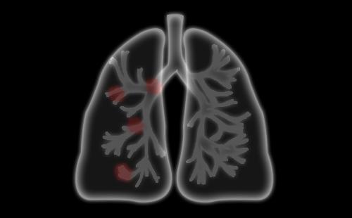 肺气肿会导致肺结节吗?肺结节的定义?