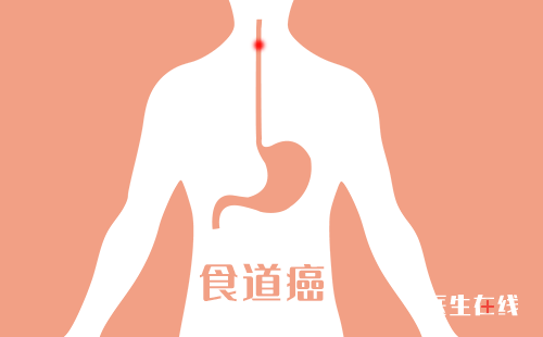 喉咙总感觉有异物?早期食道癌会出现哪些症状?