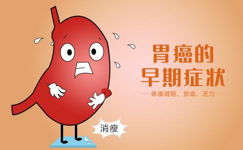 广东高尚医学影像诊断PET-CT中心pet-ct检查进展期胃癌有作用吗?