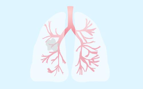 肺癌中晚期可以活多久?肺癌中晚期的典型症状是什么?