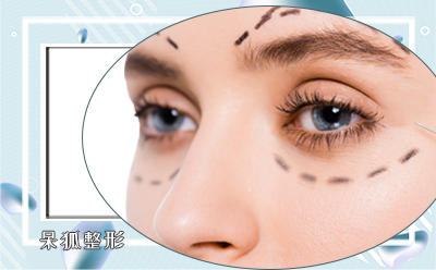 开眼角有什么危害吗?开内眼角的后遗症有哪些?