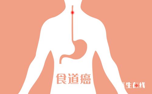 食道癌发展到中期有哪些典型症状?食道癌中期能否治好?