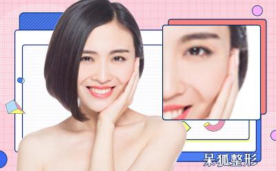 广州自体软骨隆鼻价格是多少?自体软骨隆鼻的优势有哪些呢?
