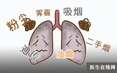 为什么有人不吸烟也会得肺癌? 肺癌病因到底有哪些?